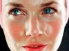 нормальная кожа лица