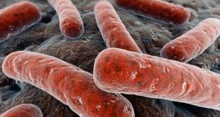 Tuberkulez-003
