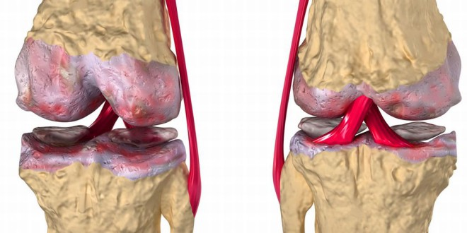 Лечение артроза острый период -