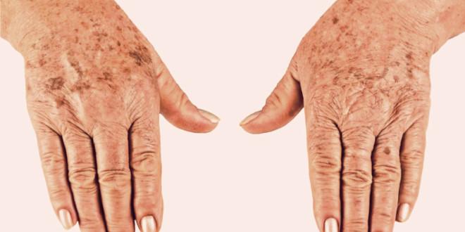 Домашние средства от возрастных пятен на лице, кожи рук и ногах